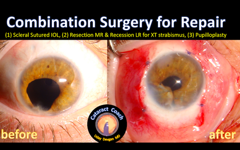 iris repair complex intraop