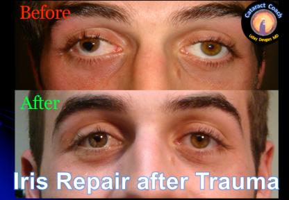 Iris Repair complex