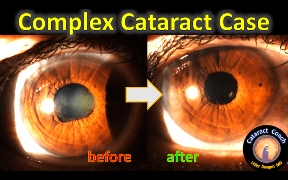 complex case before and after