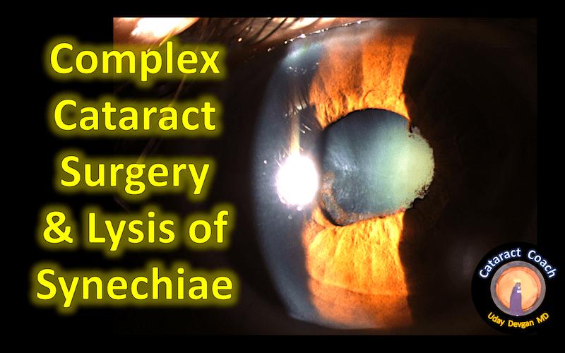 complex cataract 047 title