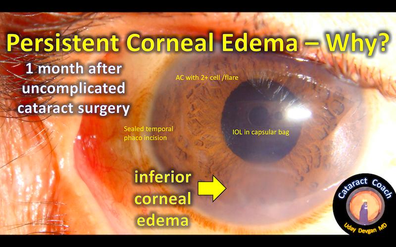 corneal edema why