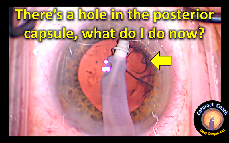 hole in post capsule title