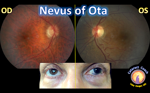 nevus of ota fundus