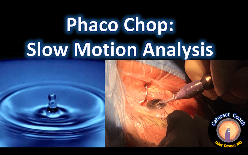 phaco chop slow motion