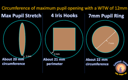 pupil circumference