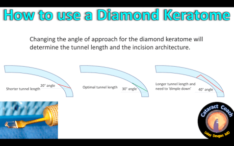diamond ker angle