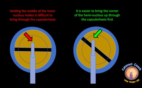 heminucleus diagram