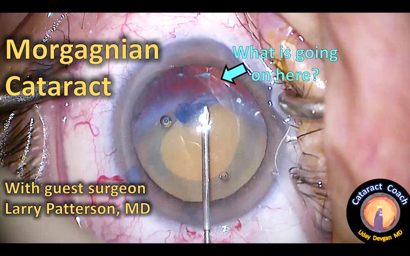 morgagnian cataract title