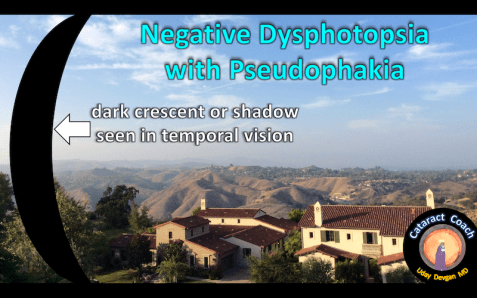 negative dysphotopsia