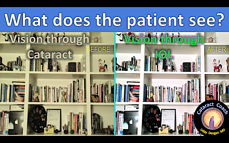what does patient see title