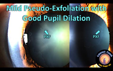 mild PXF signs