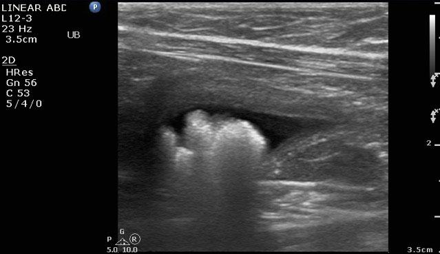 Hallie-Bladder-Stones-Ultrasound-2