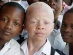 Malawi's Muslims note bishops fail to address albino murders