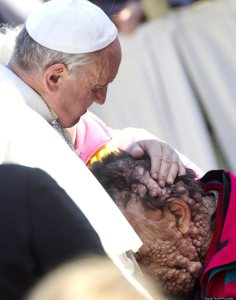 Image #: 25270966    epa03937958 Pope Francis (R) hugs a sick person in Saint Peter's Square at the end of his General Audience in Vatican City, 06 November 2013.  EPA/CLAUDIO PERI /LANDOV