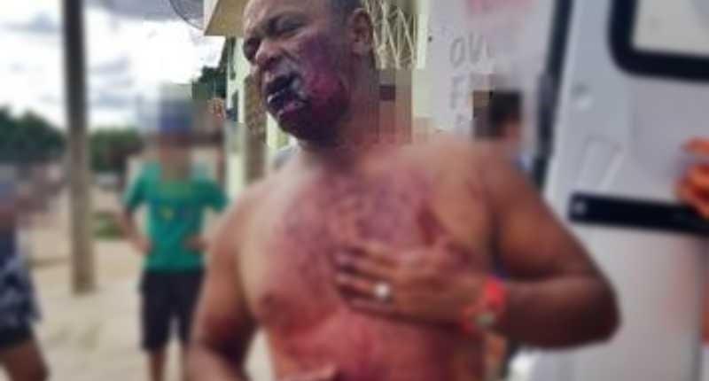 mulher atira de espingarda na regiao do pescoco do marido apos sofrer agressoes na paraiba