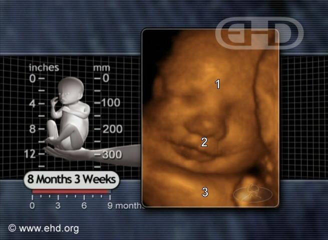 Un bebé de 35 semanas de embarazo sobrevive al aborto; fue salvado por la enfermera que lo oyó llorar dentro de una bolsa de plástico
