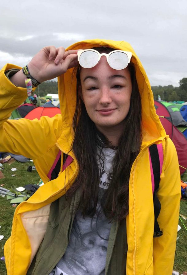menina com o rosto muito inchado durante o festival