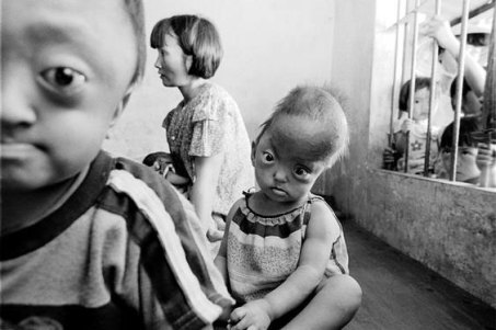 agent-orange-deformities-vietnam2