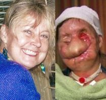 Charla Nash, before & after Chimp attack