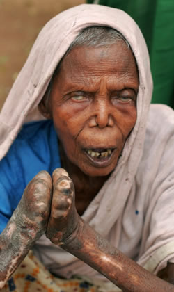 Leprosy - shortened fingers