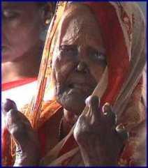 Leprosy - Shortened Fingers 2