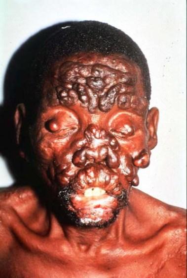 Leprosy - face nodules