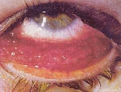 Chlamydia in the eye