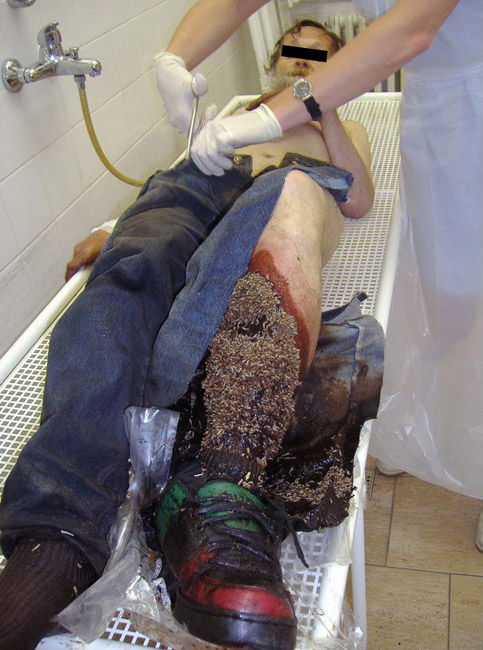 Huge bolus of Blowfly maggots attending necrotic leg wound