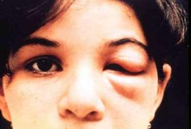 chagas-disease