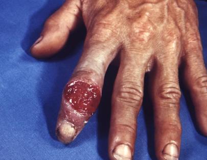 syphilis (3)