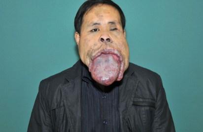 Giant tongue