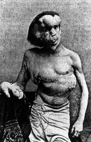 Joseph Merrick - The Elephant Man