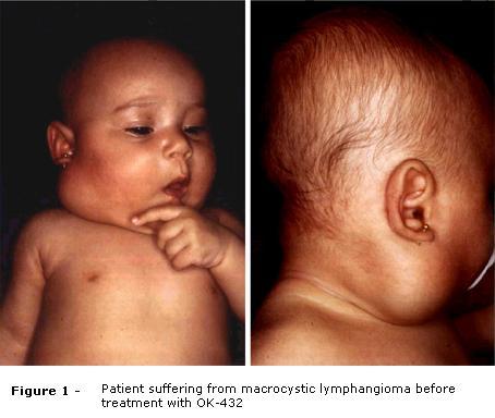 Cavernous lymphangioma