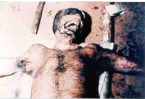 Human Mutilation