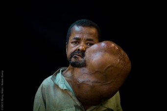 sambany-tumor