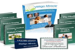 Vitiligo Miracle Review