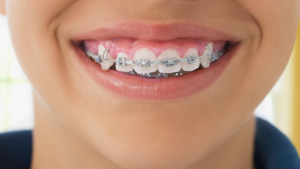 Orthodontist Kept Children In Braces Longer Than Necessary, Mass. AG Alleges In Lawsuit