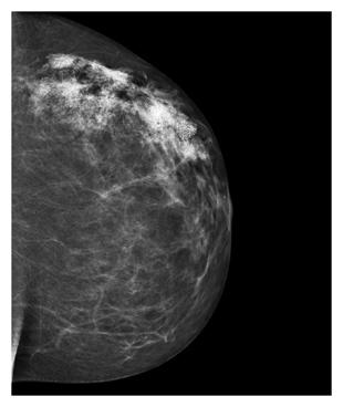 shea-hartman-mammogram.jpg