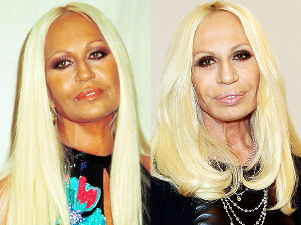 Image result for donatella versace before and after plastic surgery