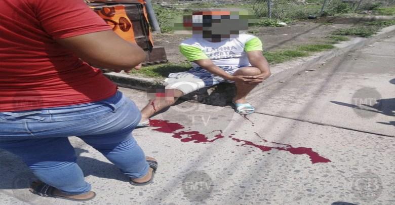 Motociclista queda herido al ser arrollado