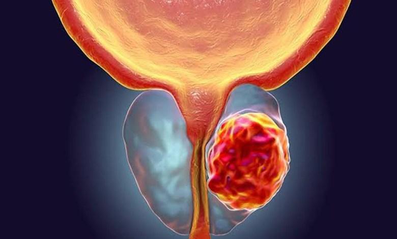 Mortandad por cáncer de próstata aqueja a los mexicanos