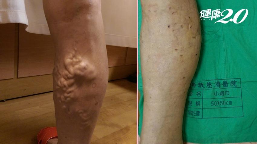 長期久坐久站當心腿爆青筋 腿部出現5癥狀要留意|健康2.0