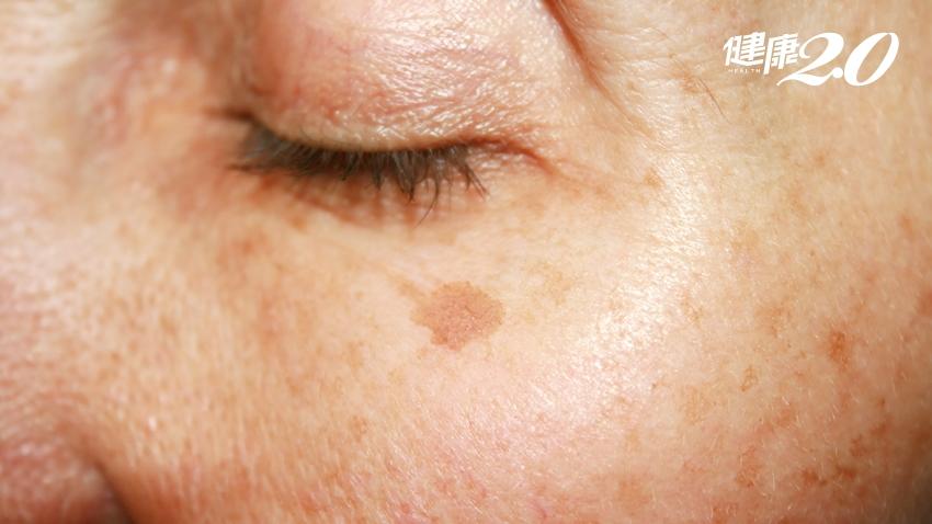 陽光好毒?紫外線過量曬出老人斑 2種情形當心皮膚癌!|健康2.0