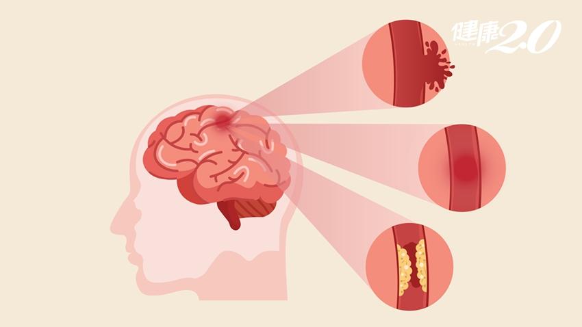 廚師50歲腦中風,喪失吞嚥功能!神內醫師:中壯年注意高發時間
