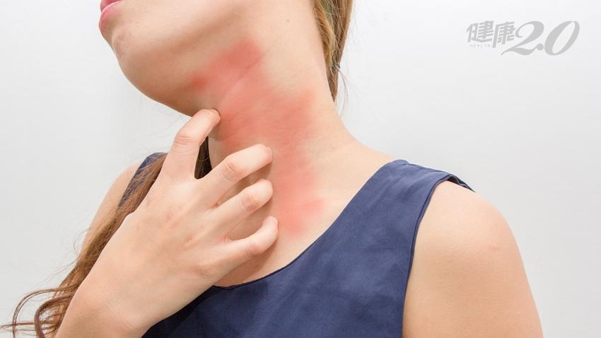 3種冬季常見的皮膚過敏,竟是暖身進補吃出來