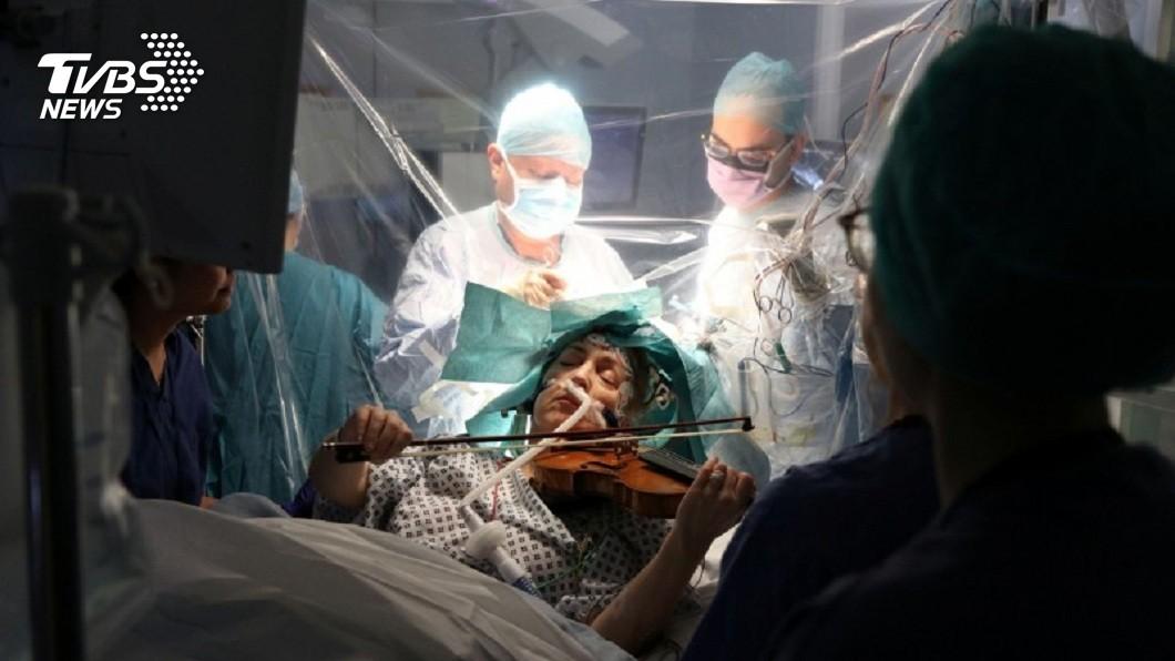 驚奇!英小提琴手動腦部手術 意識清醒「邊開腦邊演奏」│TVBS新聞網