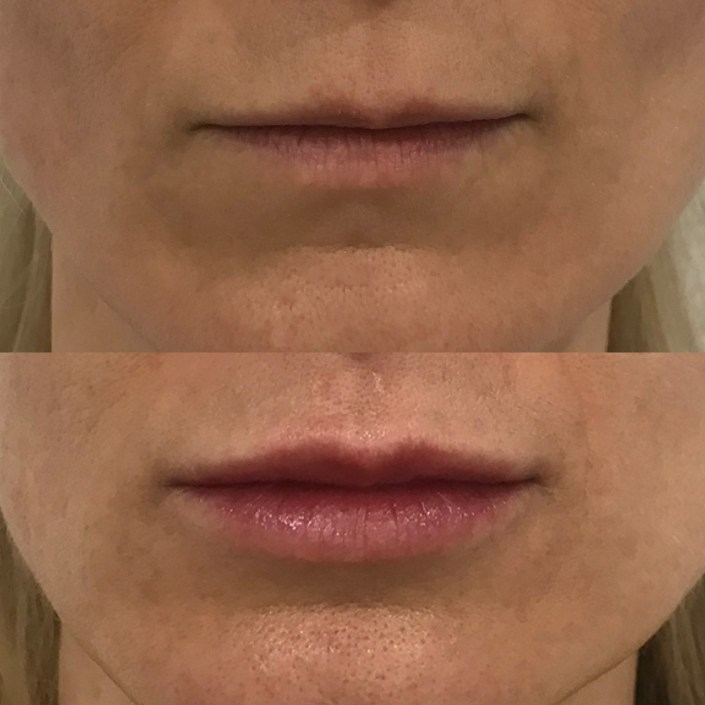 Lips before and after MUDr. Diana Visnovska