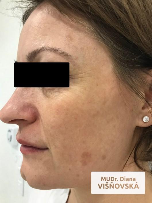pigmentacie pred a po_concept clinic
