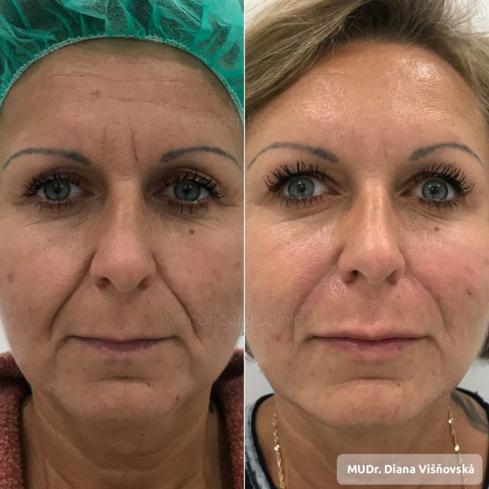 Facecontouring,botox, before after Concept Clinic