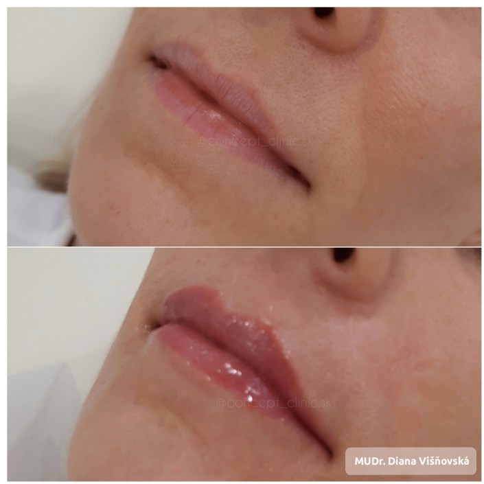 Lips before after Concept Clinic